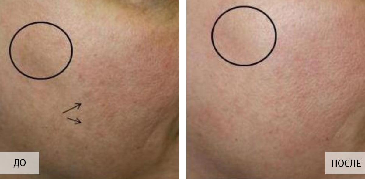 Пациент до и после в Бьюти Спейс Клиник