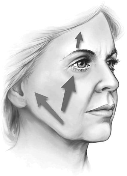 Beauty Space Clinic Композитный вектор лицевой подтяжки - это верхний медиальный.