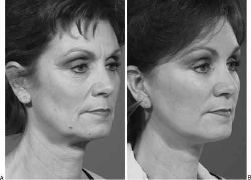 Beauty Space Clinic Первичный композитный лифтинг (комбинированная пространственная пластика лица) у 60-летней женщины, которая обладает отличной кожей и нормальным балансом структур лица. Обратите внимание на высокую массу щек и послеоперационную гармонию лица