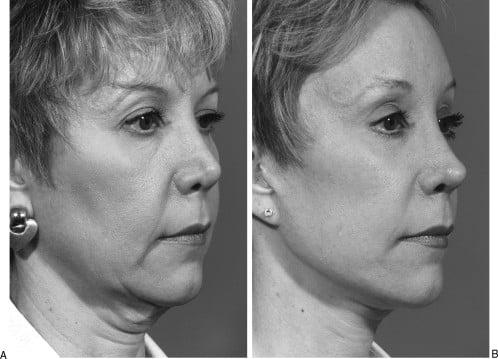 Beauty Space Clinic Первичная подтяжка лица с предыдущей ринопластикой, в результате которой нос становится укороченным. У пациента также наблюдается нарушение прикуса. Композитная подтяжка лица с имплантатом подбородка (ментопластика) и вторичная ринопластика для удлинения носа