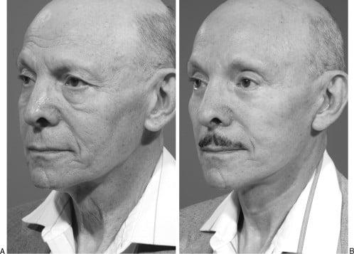 Beauty Space Clinic Первичная подтяжка лица у 73-летнего мужчины со скуловой полумесячной деформацией. Проведена тотальная коррекция скуловой зоны (пластика средней зоны лица) и пластика лица