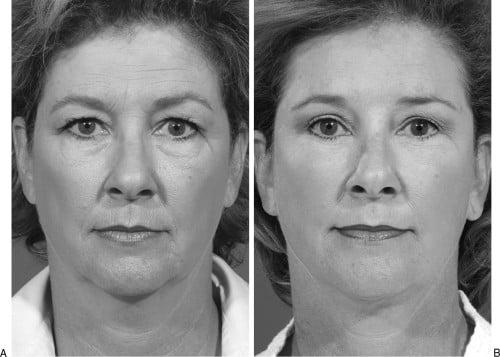 Beauty Space Clinic Первичная подтяжка лица (фейслифтинг) у пациентки с избытком жировой ткани в нижней части лица. Удаление избытков жировой ткани в нижней части лица (липосакция шеи), создающее лучшую подбородочную линию.