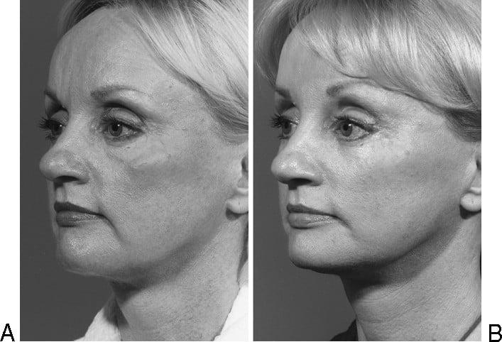 Beauty Space Clinic Первичная подтяжка лица (фейслифтинг) с удалением избытков жировой ткани в подбородочной области (липосакция шеи). Коррекция уровня и вида скуловых областей (пластика средней зоны лица).