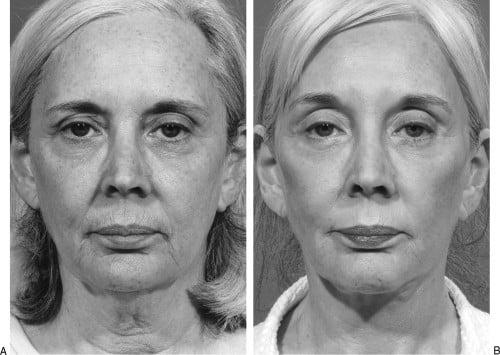 Beauty Space Clinic Первичная подтяжка лица (фейслифтинг) на фоне общевозрастных изменений, включая высокий лоб и полые глаза. Семь лет спустя после комплексной подтяжки лица (фейслифтинга) с подтяжкой бровей (пластика лба и бровей) с выравниванием волос и дермабразией верхней губы.