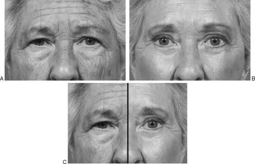 Beauty Space Clinic Выраженное старение периорбитальной области. Через год после периорбитального омоложения (пластика средней зоны лица) с композитной подтяжкой лица.
