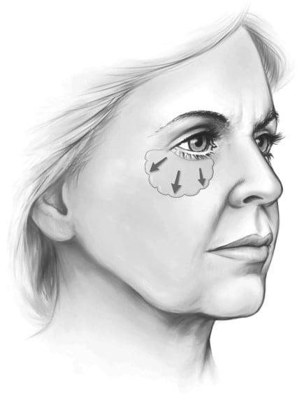 Beauty Space Clinic Композитная лицевая подтяжка включает в себя освобождение септальной мембраны, которая предотвращает западение области нижних век.