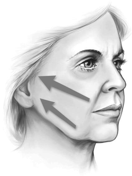 Beauty Space Clinic Все обычные подтяжки лица являются боковыми векторными пластиками.