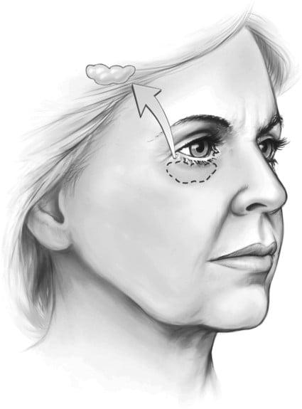 Beauty Space Clinic Традиционная нижняя блефаропластика обычно включает удаление орбитального жира.
