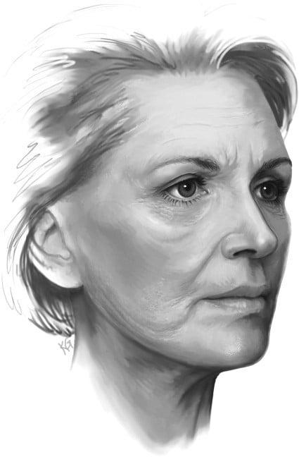 Beauty Space Clinic Боковая векторная подтяжка лица (фейслифтинг) может со временем приводить к провисанию тканей в нижней части лица.