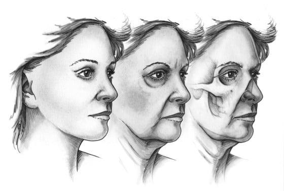 Beauty Space Clinic Происходит прогрессивная скелетонизация периорбитальной зоны, которая становится очевидной в третьей декаде жизни.