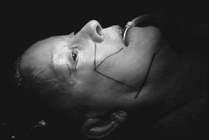 Beauty Space Clinic Маркировка на лице включает в себя челюстную линию и скуловые мышцы.
