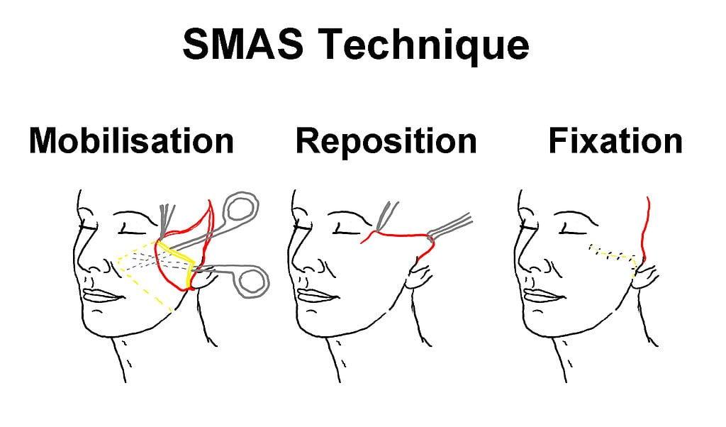 Техника SMAS Бьюти спейс клиник