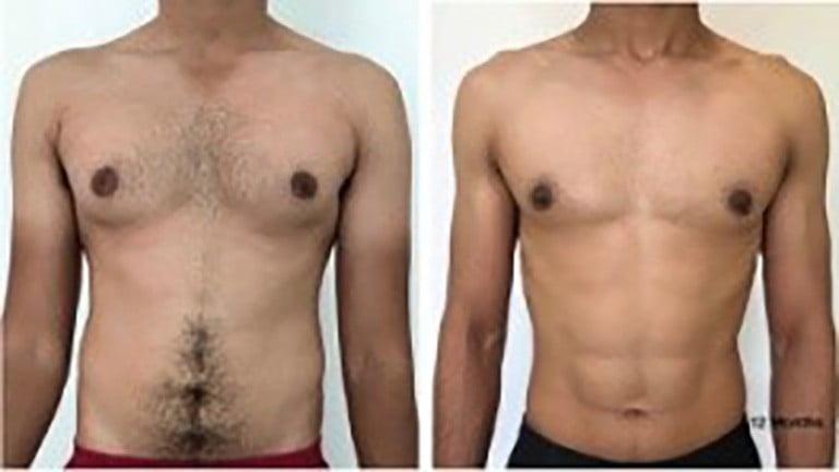 гинекомастия у мужчин, лечение в клинике бьюти спейс