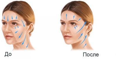 Beauty Space Clinic Обзор подтяжек лица
