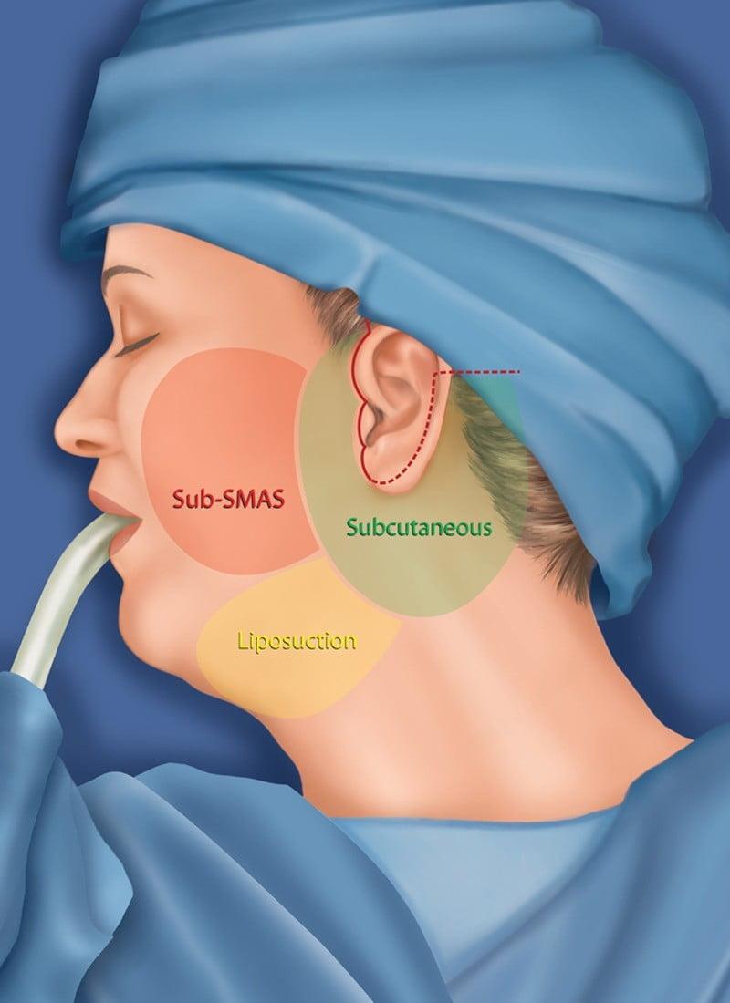 Beauty Space Clinic Отмечен разрез для подтяжки лица СМАС лифтинга (SMAS lifting) .