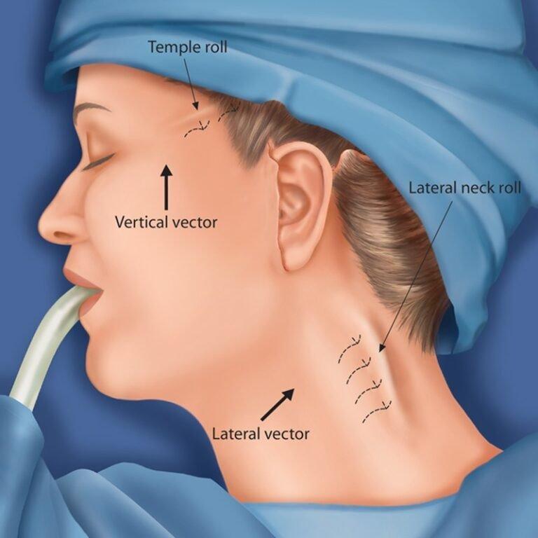 Beauty Space Clinic Диаграмма, иллюстрирующая размещение швов, используемых для фиксации поднятой SMAS (СМАС) по отношениею к глубокой височной фасции