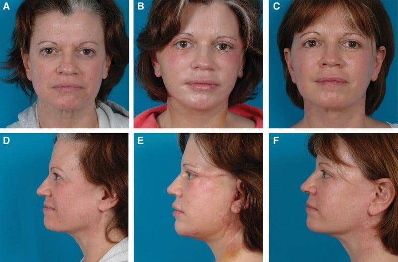Beauty Space Clinic Фронтальные и боковые фотографии 47-летней женщины, прошедшей СМАС подтяжку