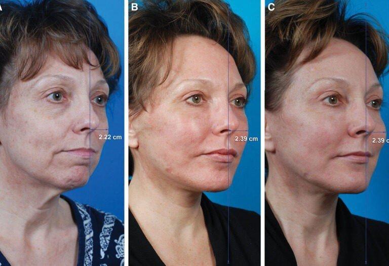 Beauty Space Clinic Правые угловые фотографии 52-летней женщины, прошедшей подтяжку лица по методу суб-SMAS (СМАС подтяжка лица), верхнюю блефаропластику, субментальную липэктомию (липосакцию шеи), жировую инъекцию (липофилинг) (30 мл)