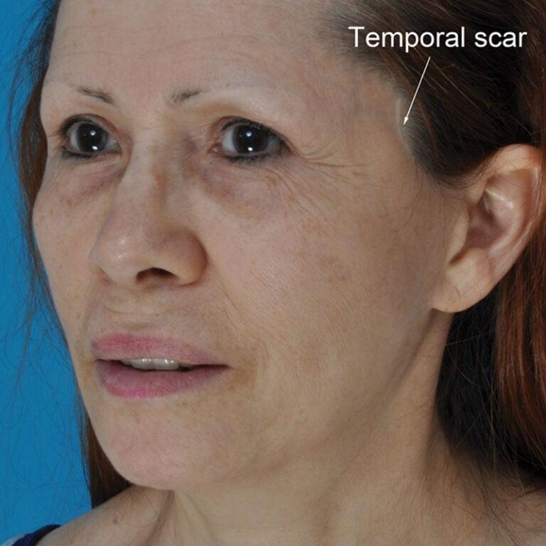 """Beauty Space Clinic 63-летняя женщина прошла """"мини-лифтинг"""" в другом месте 4 года назад. Она была недовольна шрамом и ей было неудобно носить короткие волосы."""