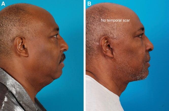 Beauty Space Clinic 60-летний мужчина прошел подтяжку лица (пластика лица у мужчин)