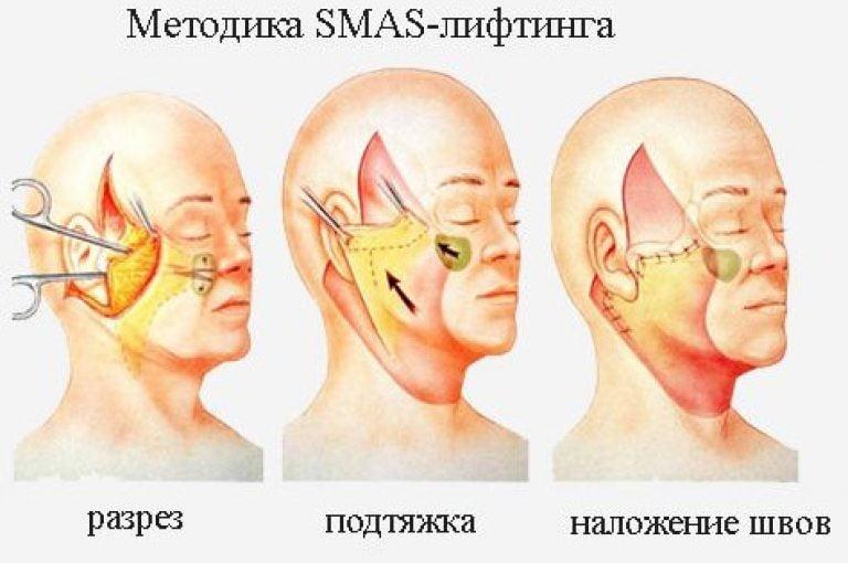 Методика SMAS-лифтинга Клиника Бьюти Спейс