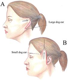 Неправильное направление подтяжки лица образует большое собачье ухо под мочкой уха. При правильном направлении подтяжки в технике MACS избытки кожи не возникают.