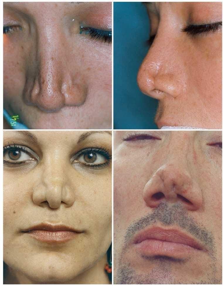 Деформация носа