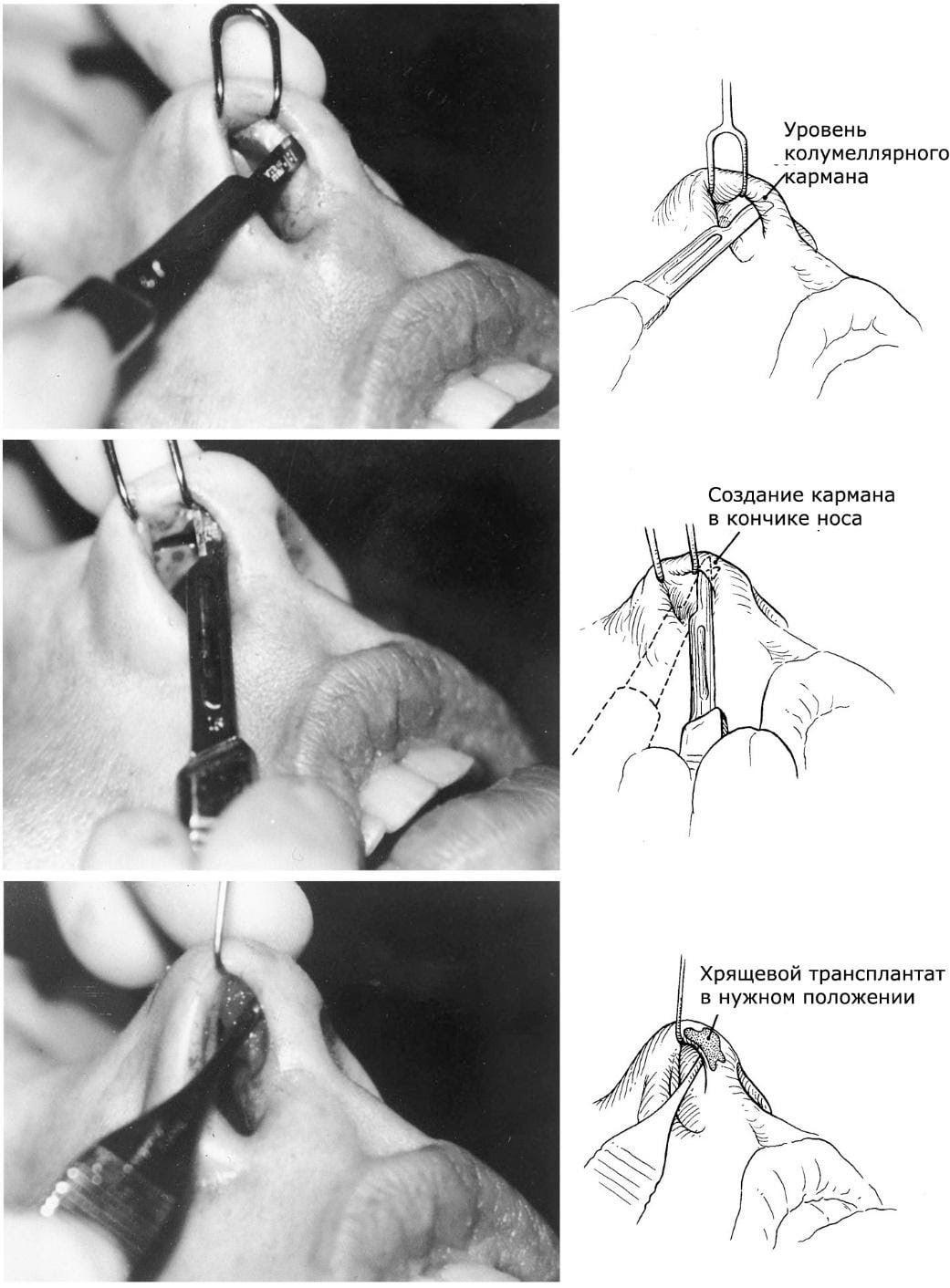 Процесс ринопластики