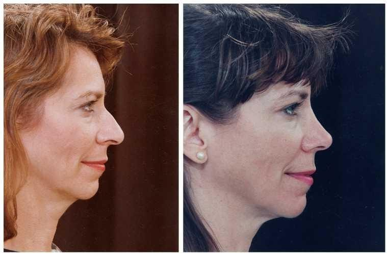 Пациент до и после ринопластики