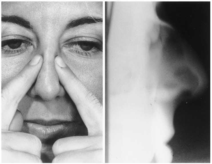 Рентген нос