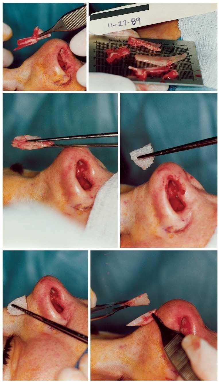 Операция ринопластики